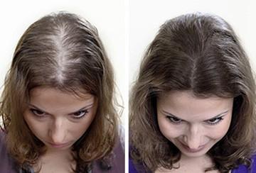 Какие пить витамины хорошие при выпадении волос