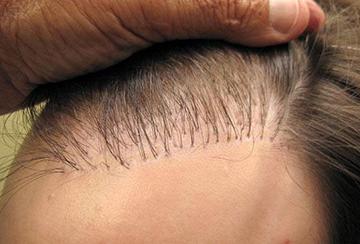 Londa бальзам восстановление волос