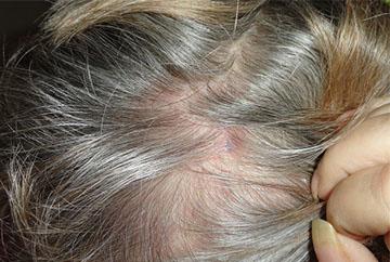 Кожа головы при шелушении