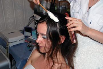 Криомассаж волос
