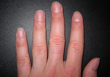 деформация ногтей