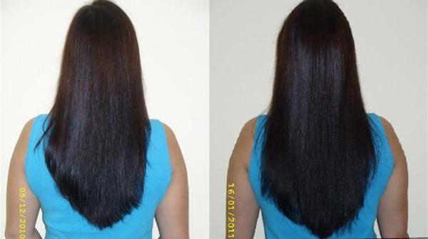 Рост волос после применения касторки