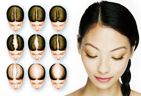 Выпадение волос - прогрессирование заболевания