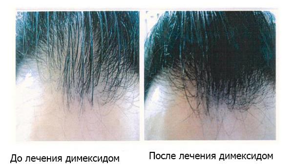 Рост волос при применении димексида