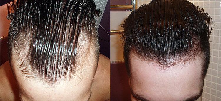 Волосы до и после использования финастерида