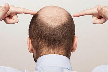 Симптомы потери волос