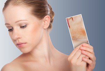 Лечение кожи головы