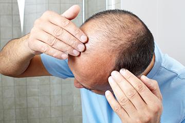 Человек теряет волосы