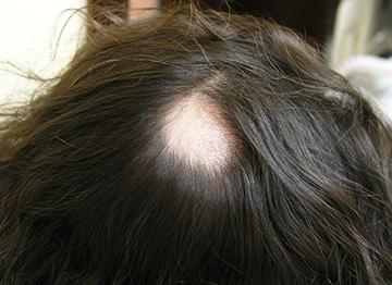 Очаговое облысение у женщин, причины очагового выпадения волос у женщин